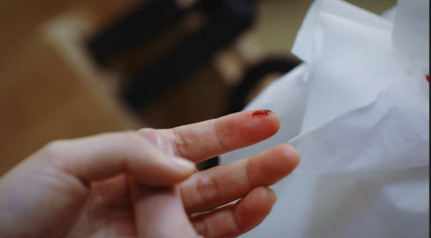 W_08_bleeding